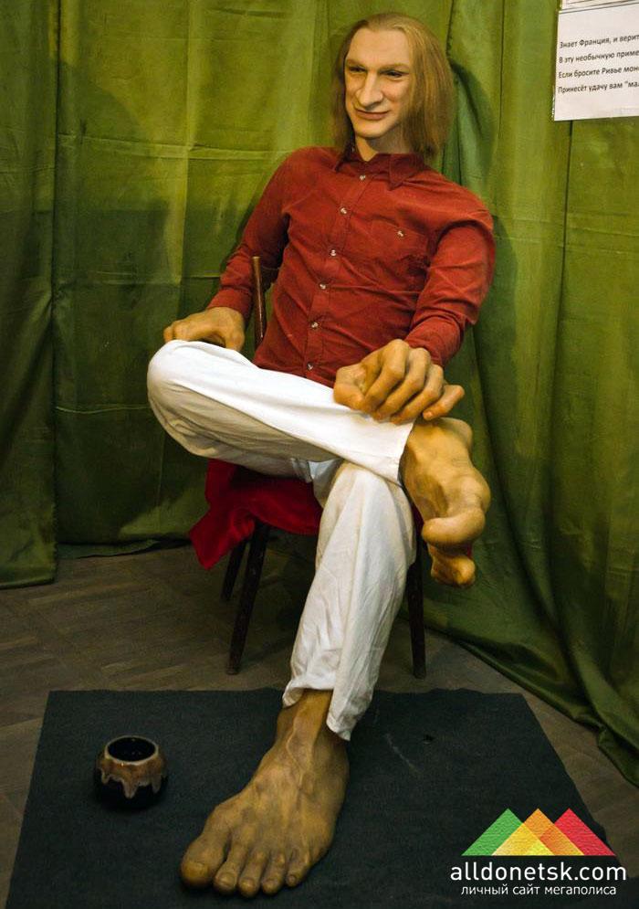 Мишель Ривье с большими ступнями и кистями рук просил милостыню и наслаждался жизнью